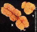 Chromosom Y