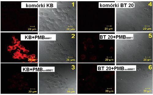 Zdjęcia konfokalne komórek linii KB i BT 20 po inkubacji z PMBMMP7 i z PMBnotMMP7