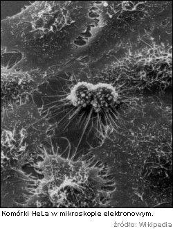 Komórki Hela