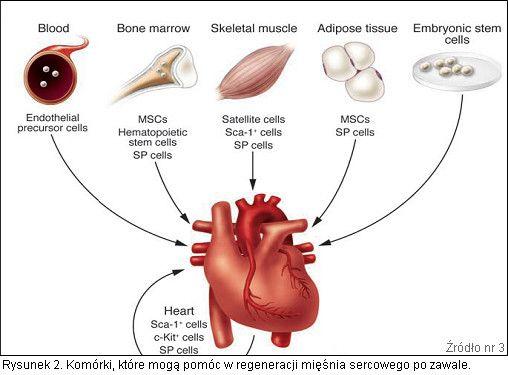 Komórki macierzyste w leczeniu zawału serca